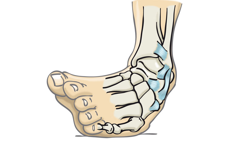 Lesiones: esguince de tobillo
