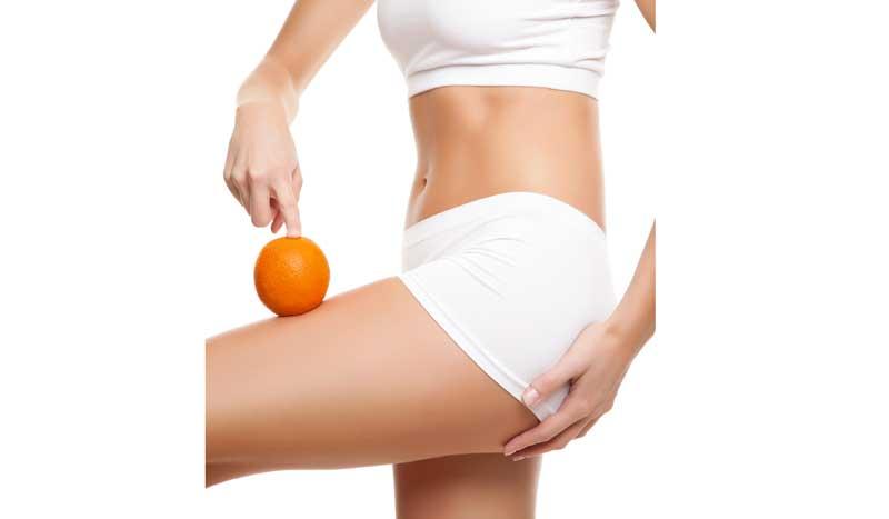 ¿Las mujeres deportistas pueden tener celulitis?