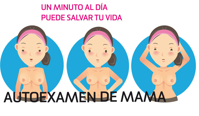 Cómo hacerse un autoexamen de mama