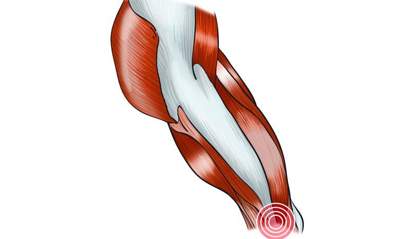 Tendinitis de la fascia lata: qué es, por qué se produce y cómo nos podemos recuperar