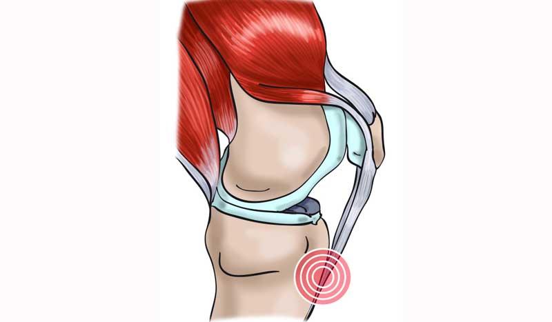 Tendinitis rotuliana: así se produce y así nos podemos recuperar de esta lesión