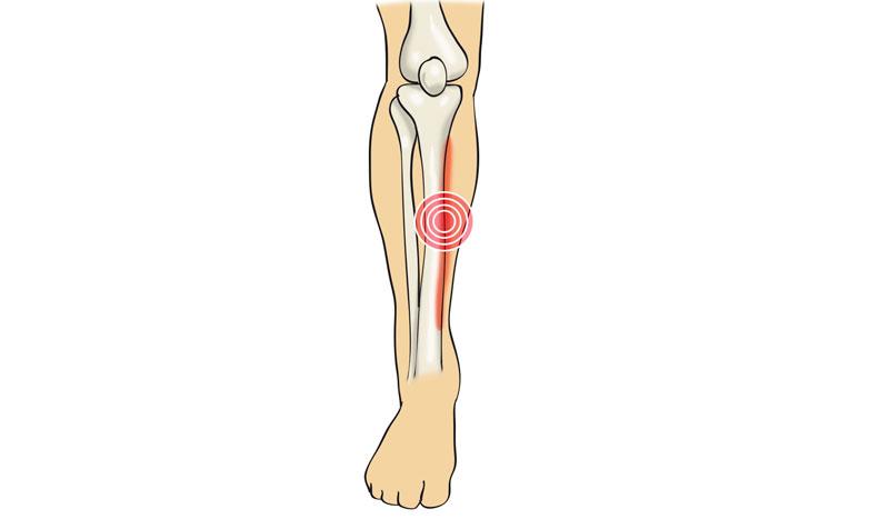 Periostitis tibial: cómo se produce y cómo nos recuperamos de esta lesión