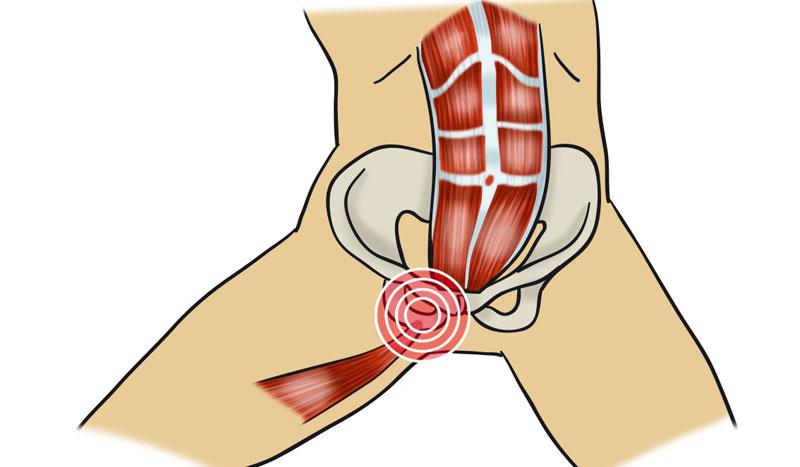 Pubalgia: causa, molestias y tratamiento para esta lesión