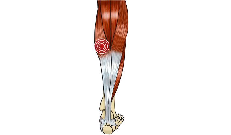 Desgarro muscular: cómo actuar y cómo recuperarnos tras esta lesión