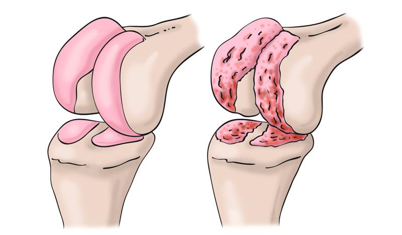 Artrosis de rodilla, ¿cuáles son sus causas y el tratamiento para recuperarme?
