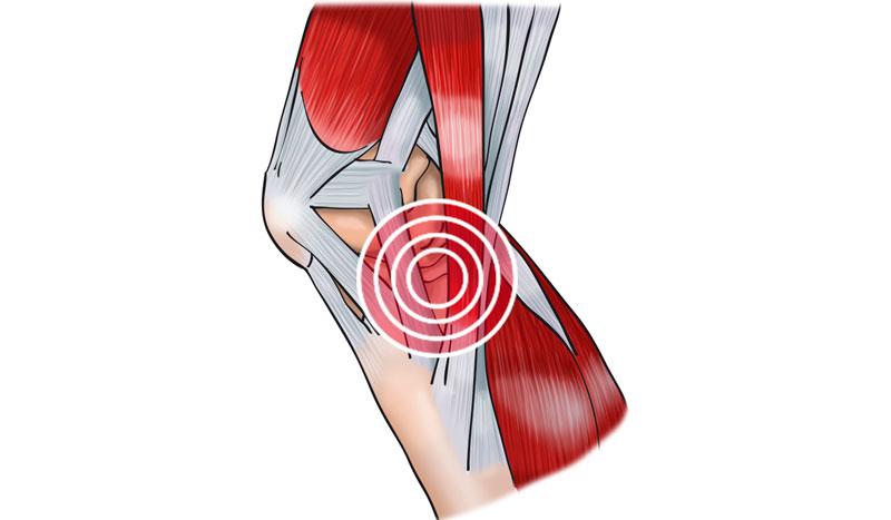 Tendinitis de la pata de ganso: ¿qué es y cómo me puedo recuperar de esta lesión?