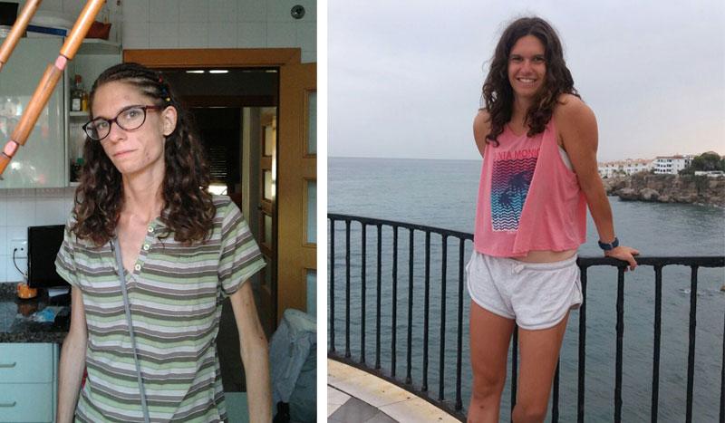 Cuando el reto es ganar peso para ganar salud, la historia de Teresa Velasco