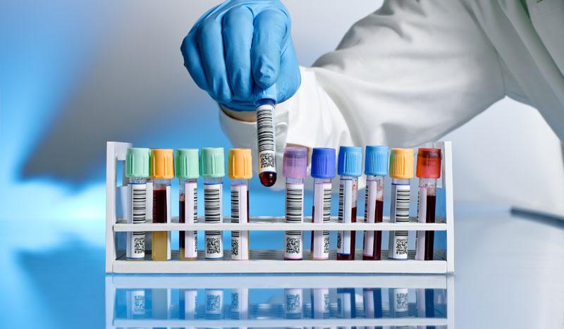 Cómo interpretar tu análisis de sangre, valores y significado