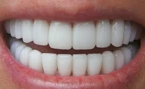 ¿Cómo afecta a tus dientes la dieta Dukan?