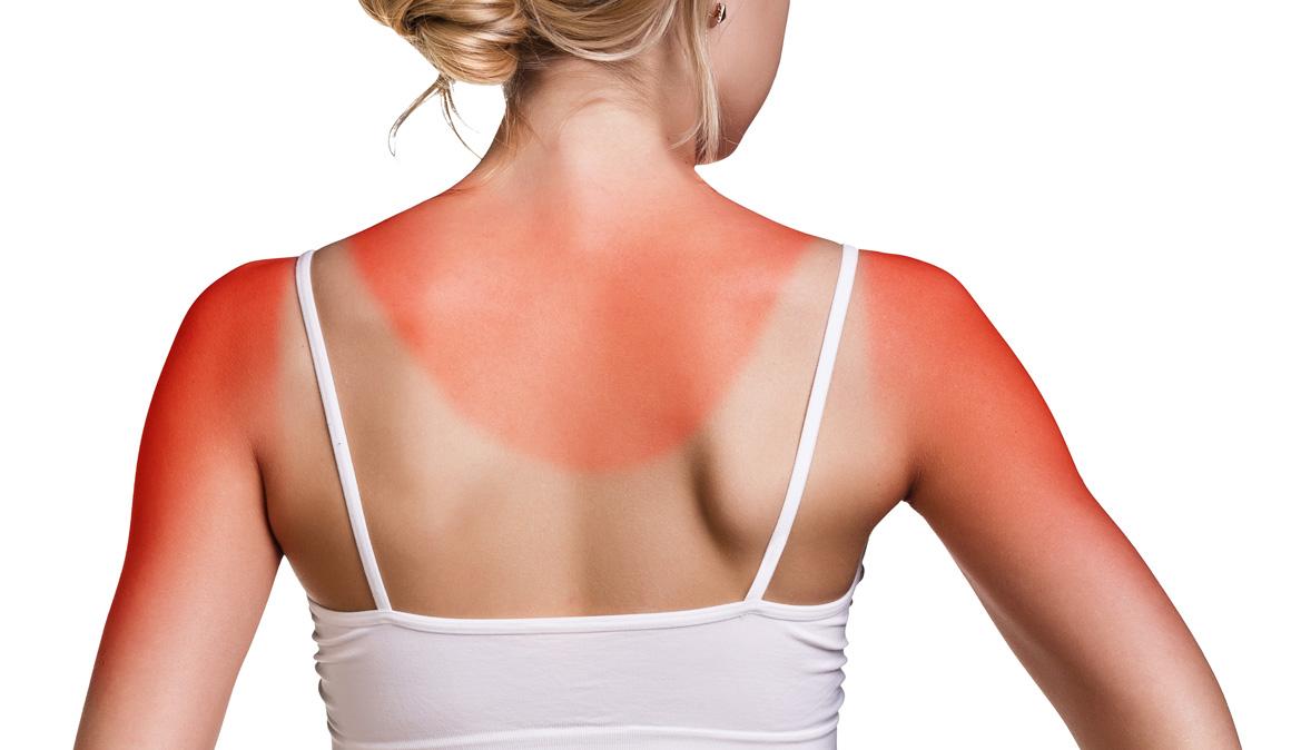 Cómo prevenir quemaduras solares si entrenamos al aire libre