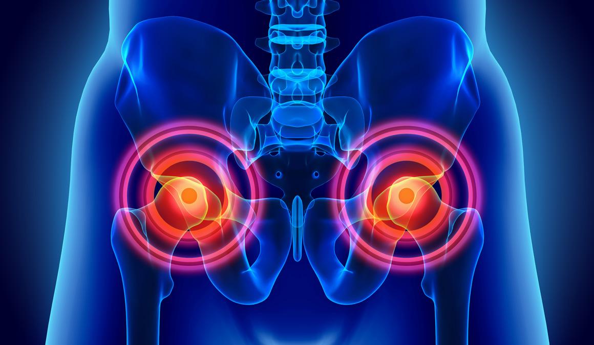 Ejercicios para cuidar y fortalecer lumbares y cadera