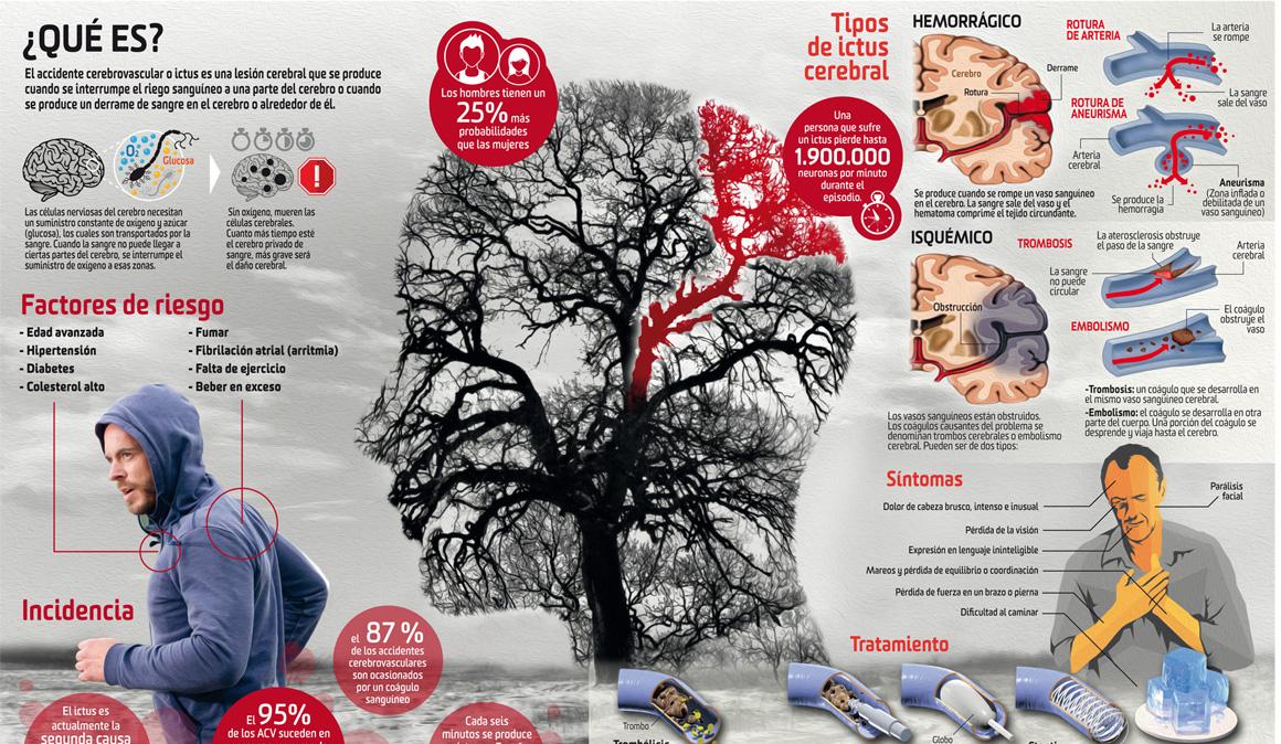 Qué es un ictus cerebral y cómo afecta a nuestro organismo: analizamos sus síntomas y tratamientos