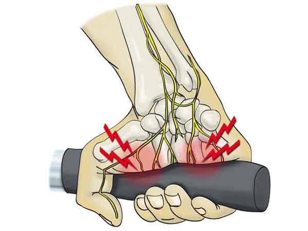 Cómo tratar una tendinitis de muñeca