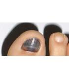 Salud deportiva: evita las uñas negras