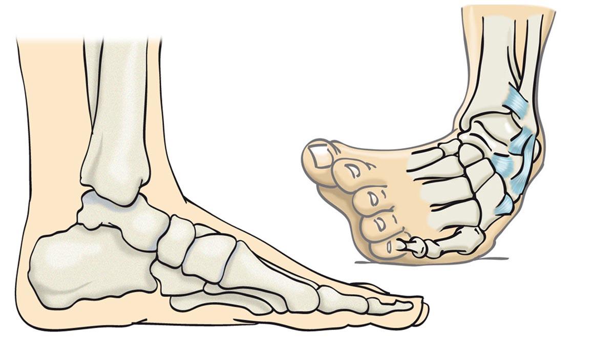 Lesiones: el esguince de tobillo