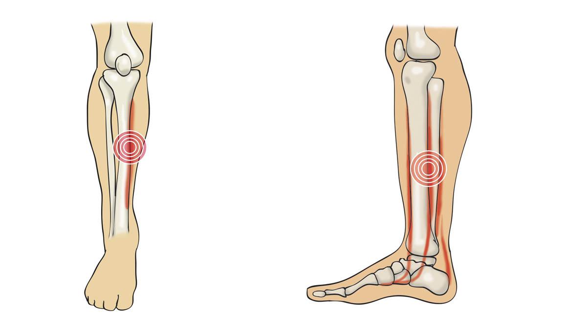 Cómo se produce y cómo podemos recuperarnos de una periostitis tibial