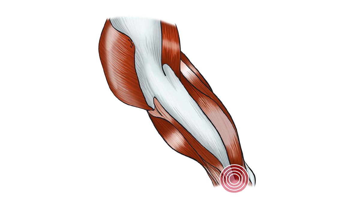 Qué es, por qué se produce y cómo nos podemos recuperar de una tendinitis de la fascia lata