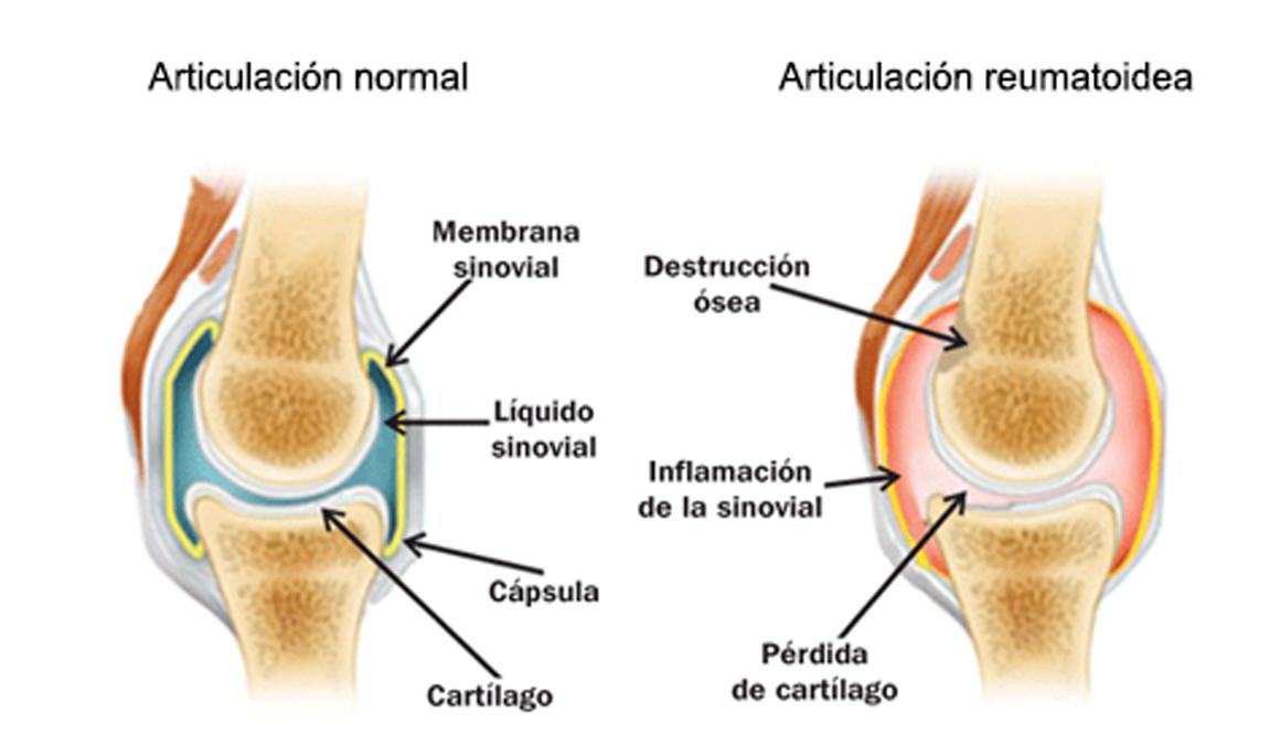 Diferencias entre artrosis y artritis