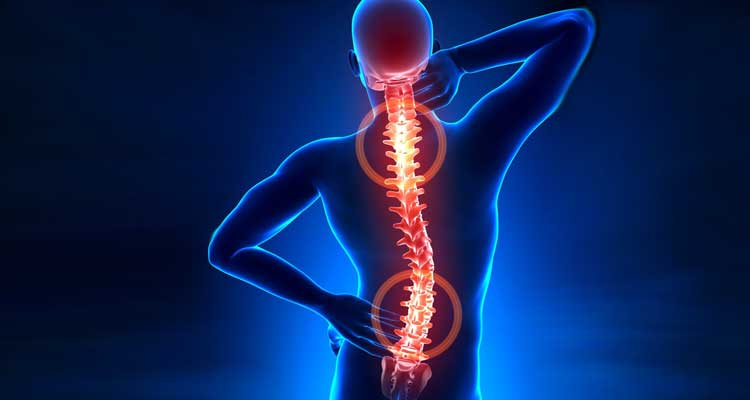 ¿Puede seguir haciendo deporte si tengo hernia discal?
