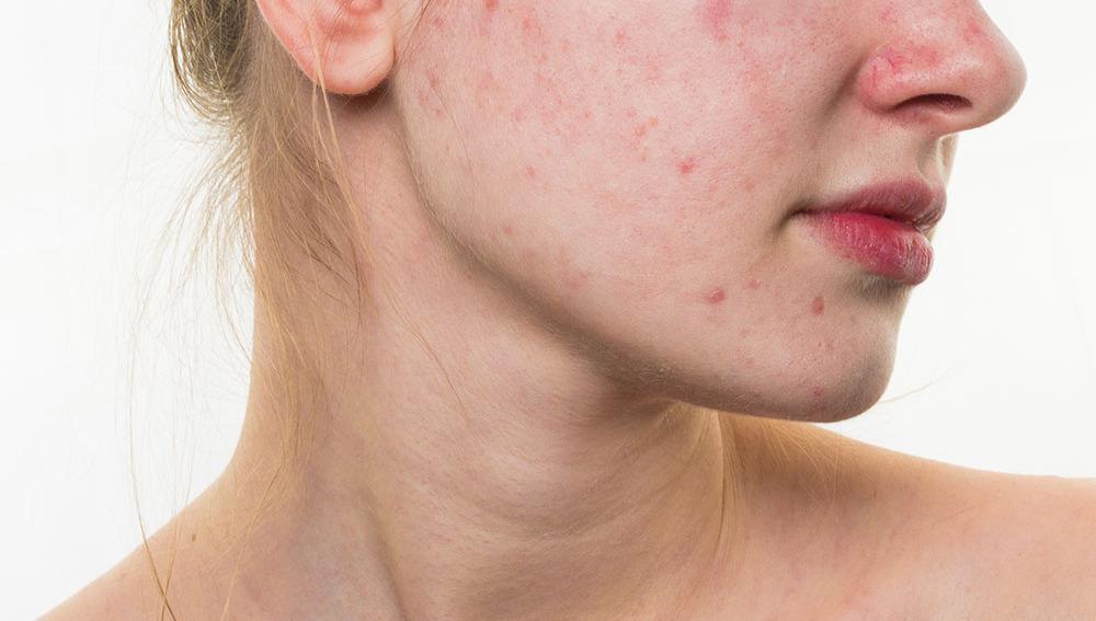 ¿De verdad puede tener algo de positivo tener acné?