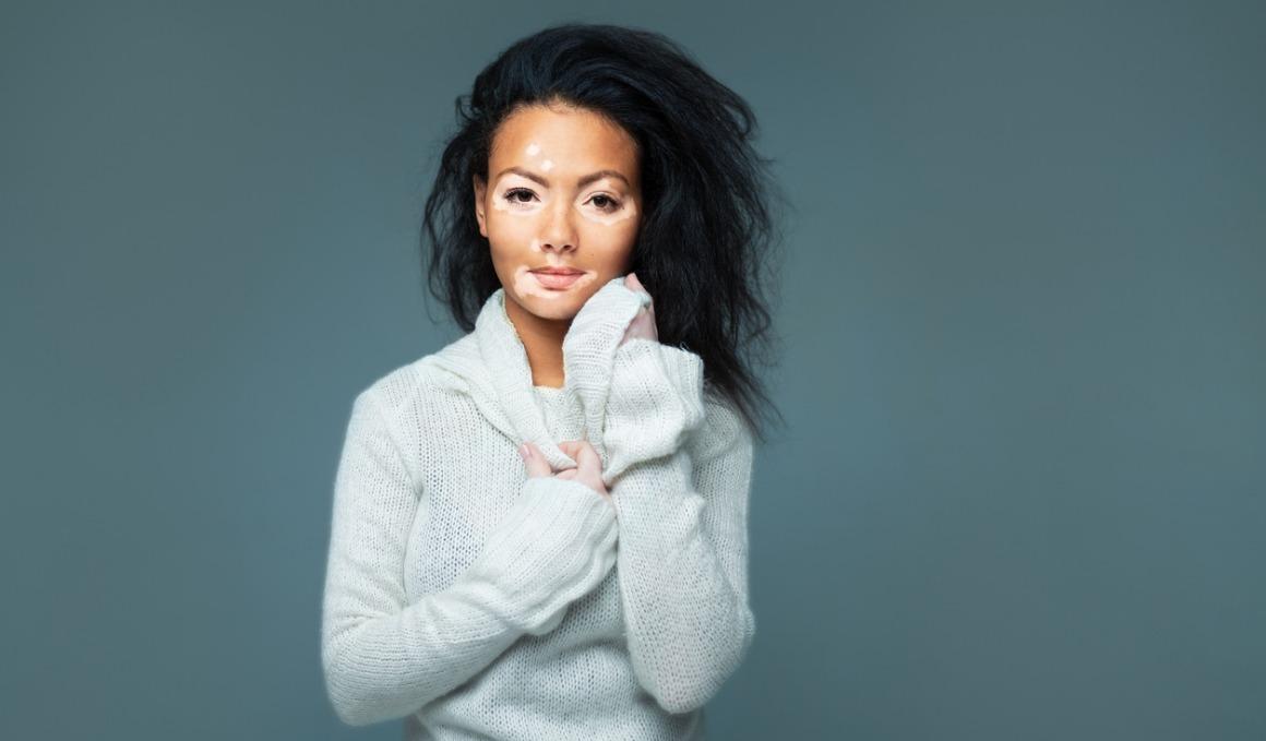 5 posibles causas de las manchas blancas en la piel