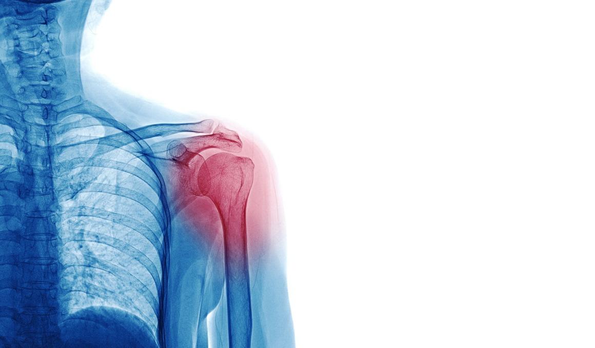 ¿Qué síntomas avisan de una tendinitis?