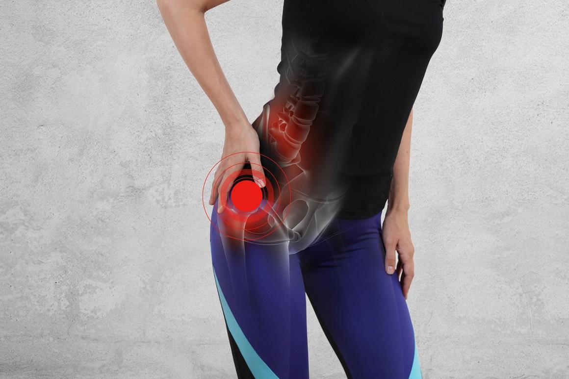 ¿En qué consiste la trocanteritis de cadera?