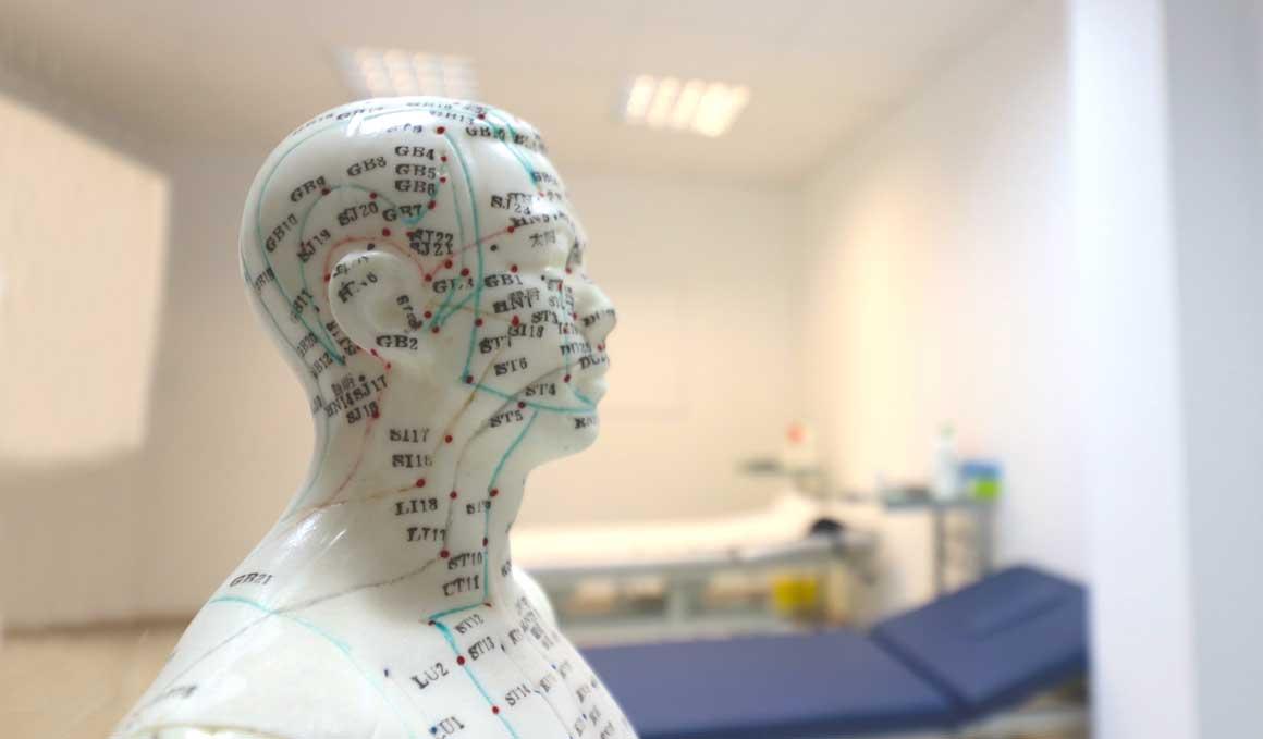 ¿Sabes que se pueden tratar el Parkinson y el Alzheimer con acupuntura permanente?