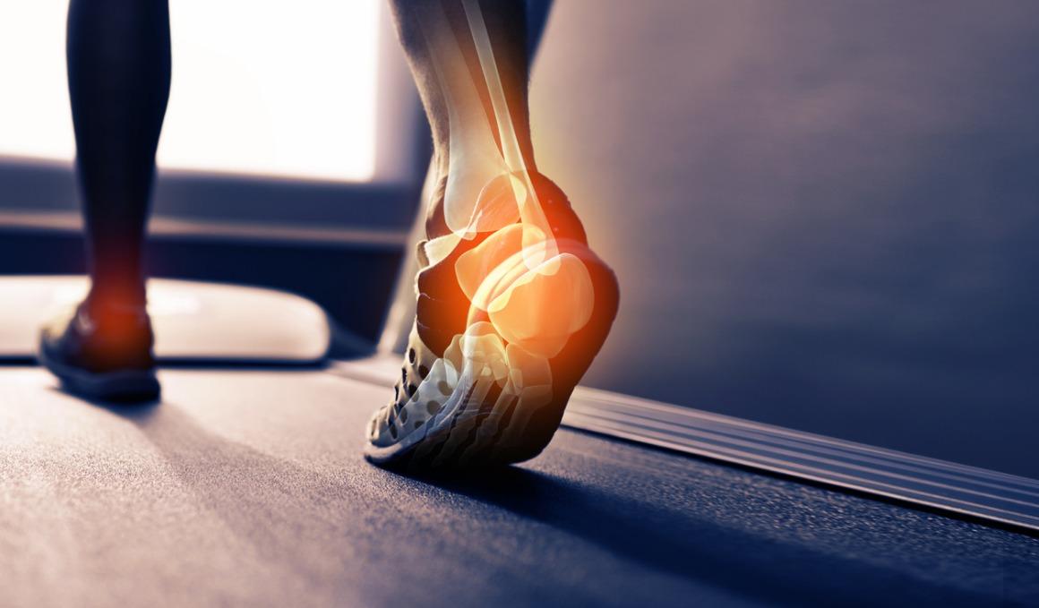 Estas son las lesiones del pie más comunes