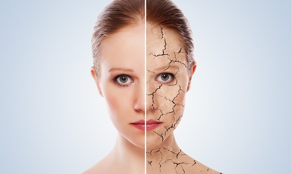 Las cinco claves para cuidar la piel en invierno