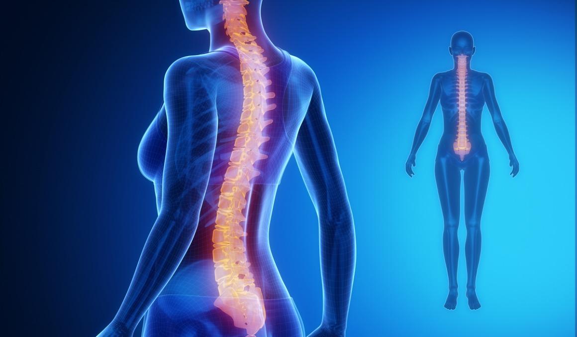 Síntomas comunes cuando sufres lordosis