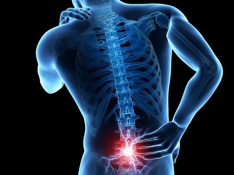 Recuperación de una hernia de disco