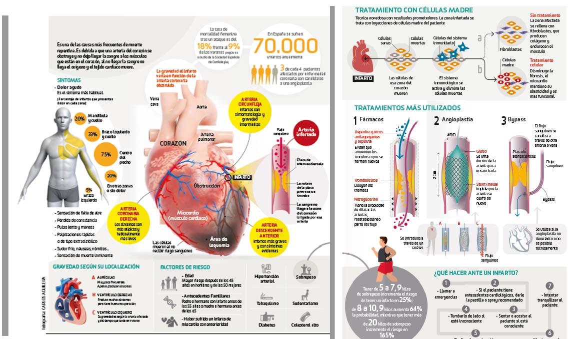 Así funciona... el infarto de miocardio