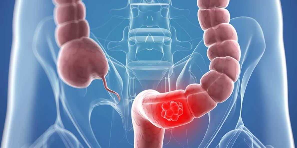 Alimentación para prevenir el cáncer de colon