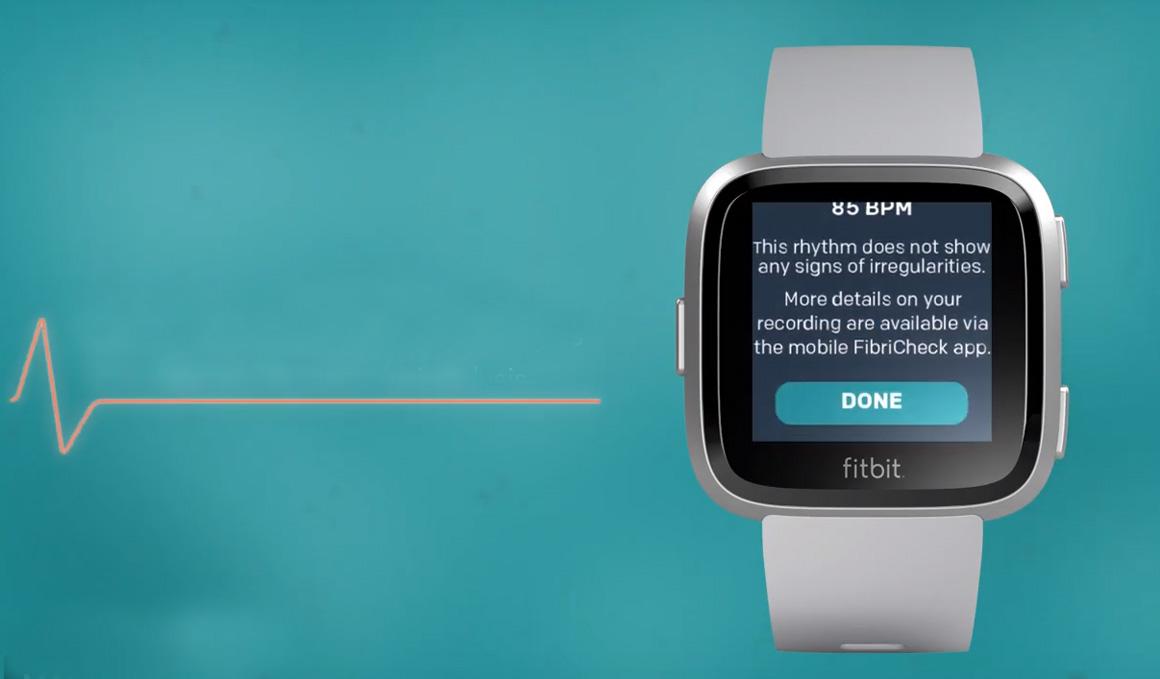 El Fitbit que previene un ataque al corazón