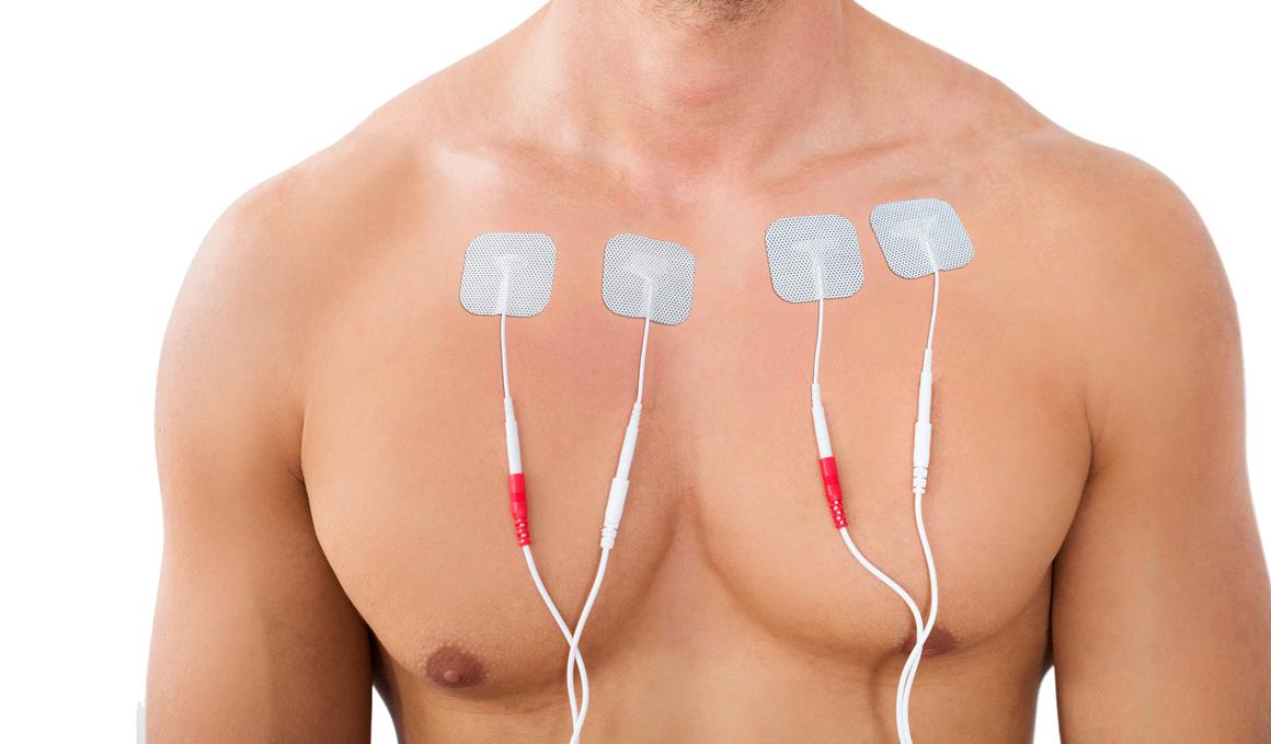 Los 3 electroestimuladores más interesantes del mercado