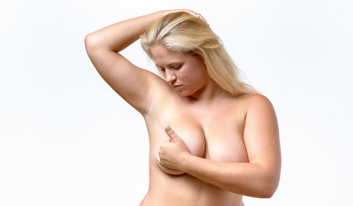 Un nuevo estudio encuentra relación entre la obesidad y el cáncer de mama