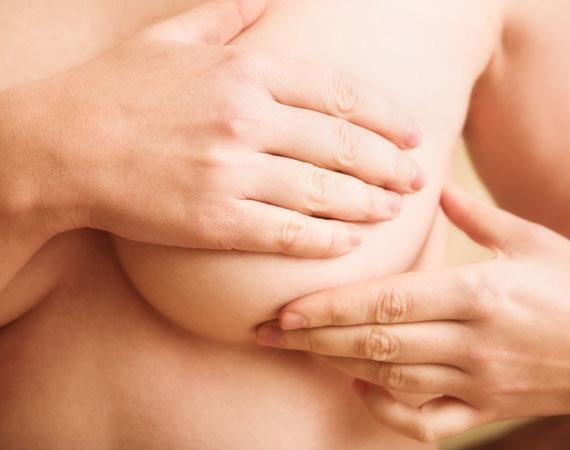 Conoce los síntomas para prevenir el cáncer de mama