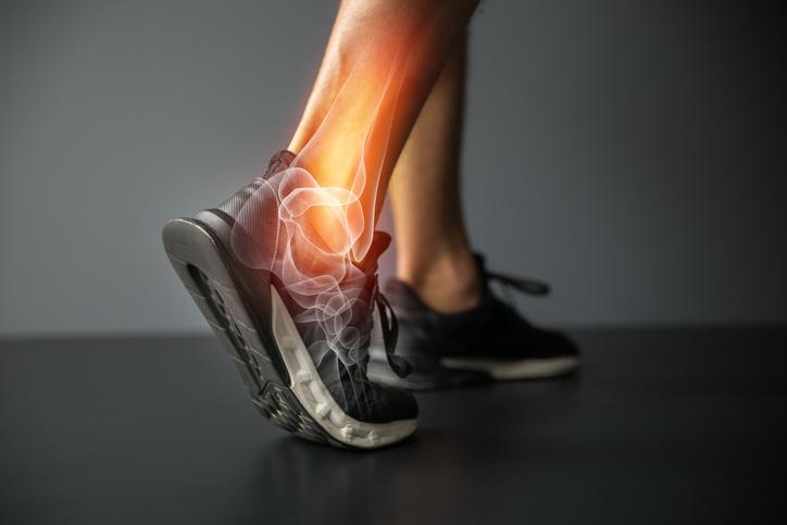 lesiones comunes en la planta del pie
