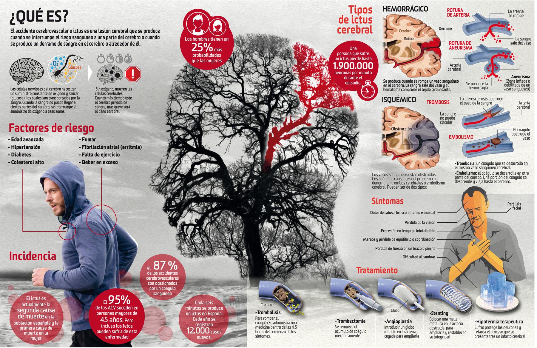 Así funciona un ictus cerebral: síntomas, causas y tratamiento